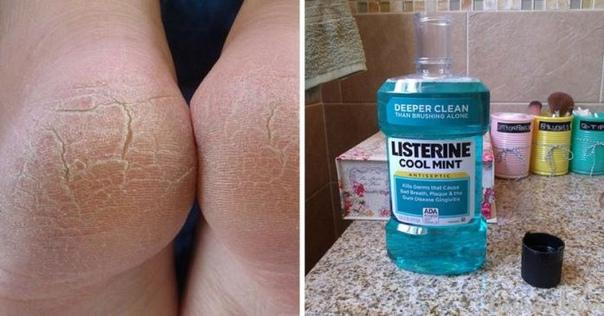 10 удивительных применений листерина, о которых должна знать каждая женщина...
