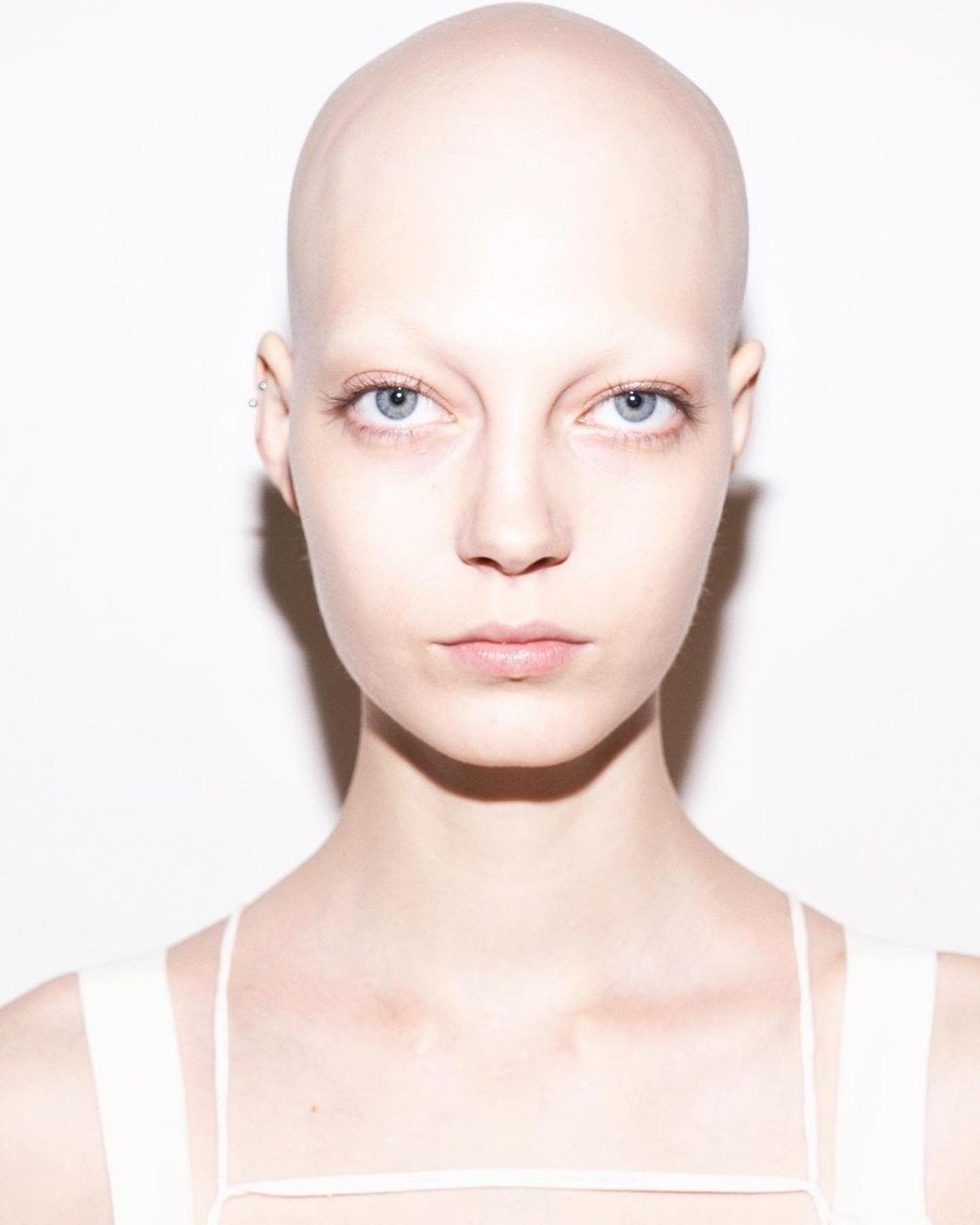 Яна Добролюбова- очень красивая модель с алопецией